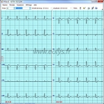 Logiciel M-Base pour transfert ECG éolys®