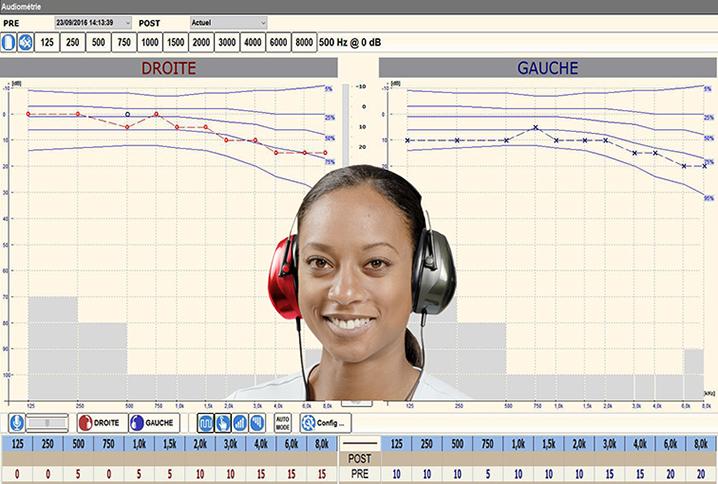 Audiométrie éolys
